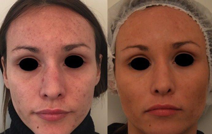 Che mascherare pori allargati su una faccia