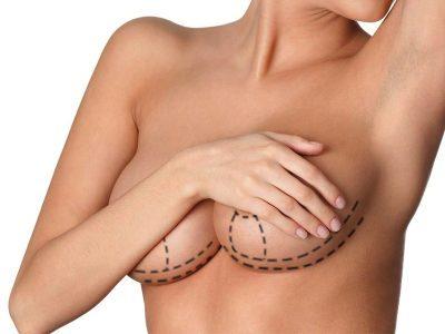 Diagnosi precoce tumore al seno Roma