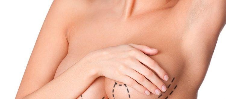 Contrattura capsulare protesi mammarie