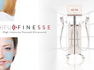 Finesse Ultrasuoni Focalizzati