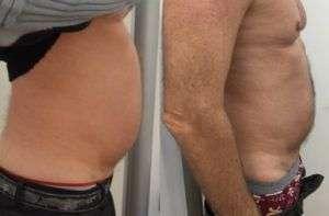 Liposuzione addome senza chirurgia