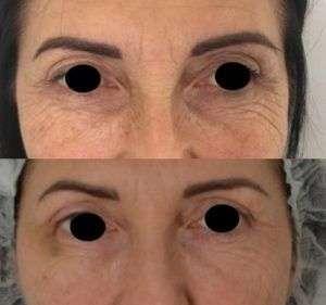 Ultherapy - Lifting volto e contorno occhi