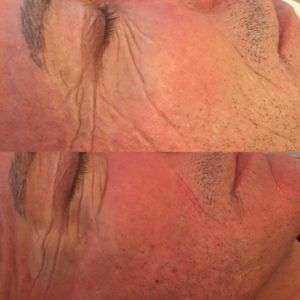 Associazione ultherapy e Prp - Rigenerazione del collagene.