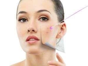 Skin Resurfacing col laser CO2 Frazionato