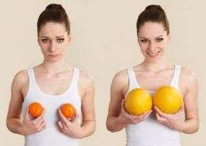Mastoplastica additiva seno