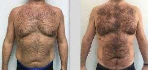 Liposuzione laser o Crioterapia