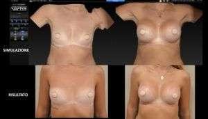 Quanto è reale la simulazione del risultato in chirurgia estetica