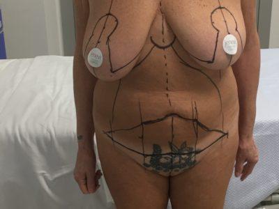 Pancia cadente e seno grande: cosa fare?