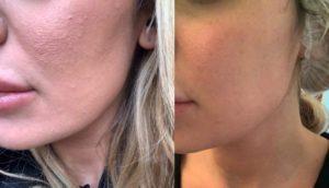Acne - cura con peeling e laser