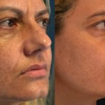 Acne – cura con peeling e laser