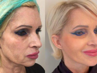Ringiovanimento del volto – tecniche combinate di chirurgia plastica estetica.