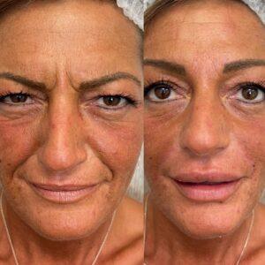 Filler acido Ialuronico per solchi nasali